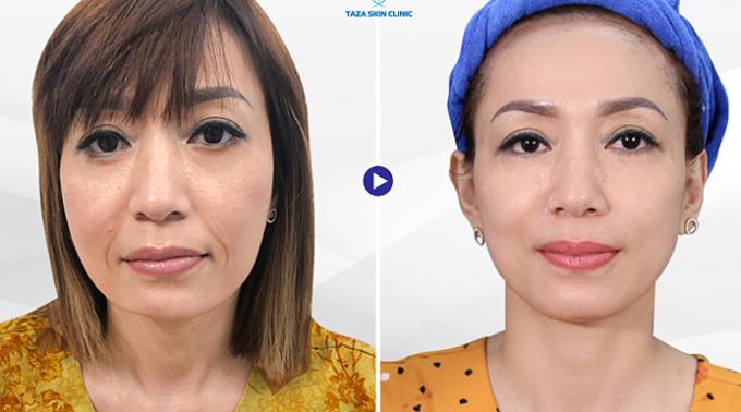 Khách hàng trước - sau khi trẻ hóa công nghệ Ultherapy tại Taza Skin Clinic.